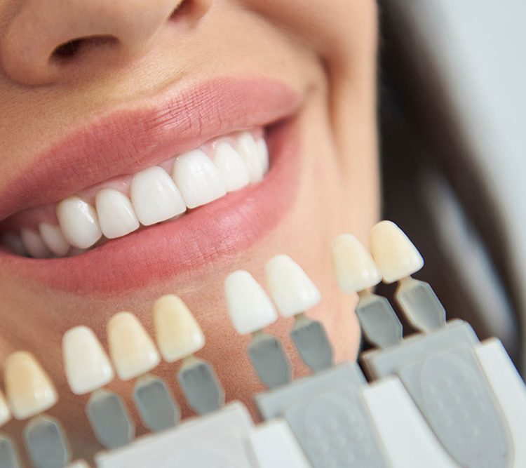 dentist matching teeth colour for patient cosmetic dentistry